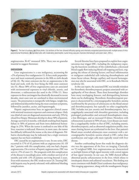 Baylor University Medical Center Proceedings January 2014